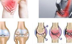 Tìm hiểu bệnh cơ xương khớp là gì và có biểu hiện ra sao