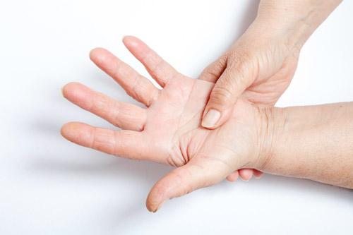 Bệnh xương khớp phong thấp nếu không điều trị sẽ rất nguy hiểm
