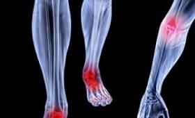 Tư vấn bệnh xương khớp chữa ở đâu hiệu quả nhất