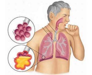 5 bệnh về hô hấp hay gặp nhất