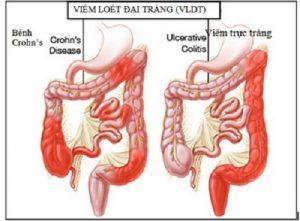 bệnh viêm đại tràng 1
