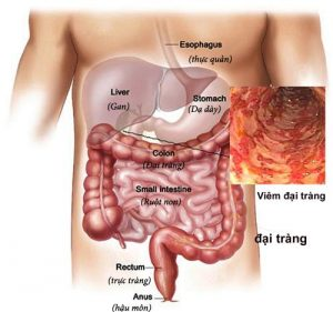 bệnh viêm đại tràng 3