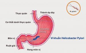 nguyên nhân gây xuất huyết dạ dày 1