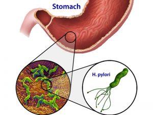 thuốc chữa viêm hang vị dạ dày hiệu quả nhất 1