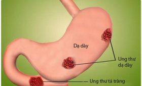 Ung thư dạ dày giai đoạn đầu có chữa được không? – Bác sỹ giải đáp!