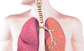 Bệnh ung thư phổi có di truyền không ? Chuyên gia tư vấn
