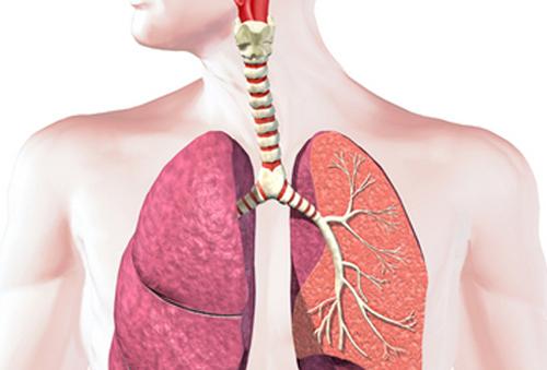 Bệnh ung thư phổi có di truyền không ?