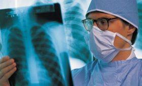 Những biểu hiện dễ thấy của bệnh lao phổi