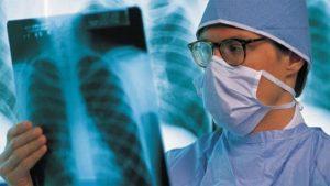 Biểu hiện của bệnh lao phổi