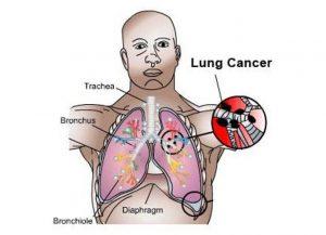 Hãy cùng tìm triệu chứng của ung thư phổi giai đoạn 1