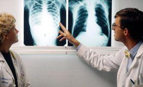 Nguyên nhân bệnh lao phổi cần nắm chắc để phòng tránh