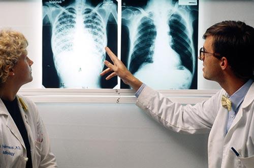 Cùng tìm hiểu nguyên nhân bệnh lao phổi